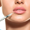 18 dolog, amit tudnod kell, mielőtt feltöltetnéd az ajkaidat