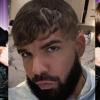 Justin Bieber sérót villantott Drake