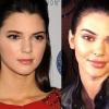 Kendall Jenner is egyértelműen feltöltötte a száját