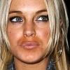 Lindsay Lohan ismét plasztikáztatott