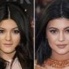 Plasztikai műtéten esett át Kylie Jenner?