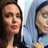 Teljesen tönkretette magát a lány, 50 plasztikai beavatkozással, hogy úgy nézzen ki, mint Angelina Jolie