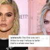 Új hét, új arc: meg sem lehet ismerni Khloé Kardashiant