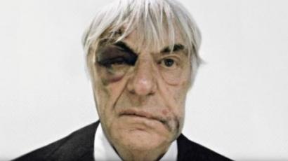 Bernie Ecclestone összevert fejjel reklámoz
