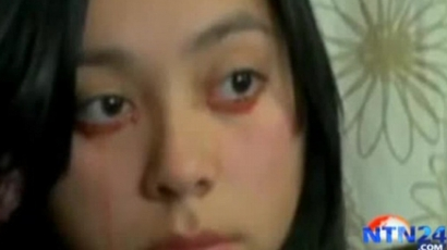 Bizarr! Vért sír egy chilei nő