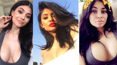 Kylie Jennert is mellplasztikával vádolták meg