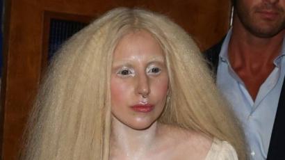 Lady Gaga elveszítette a kiskutyáját