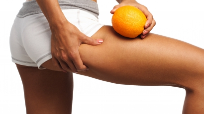 Le a narancsbőrrel!