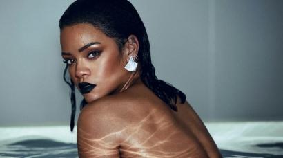 Mellbimbót villantott Rihanna