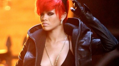 Rihanna megégette magát