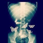 pillangók a hasamban <3